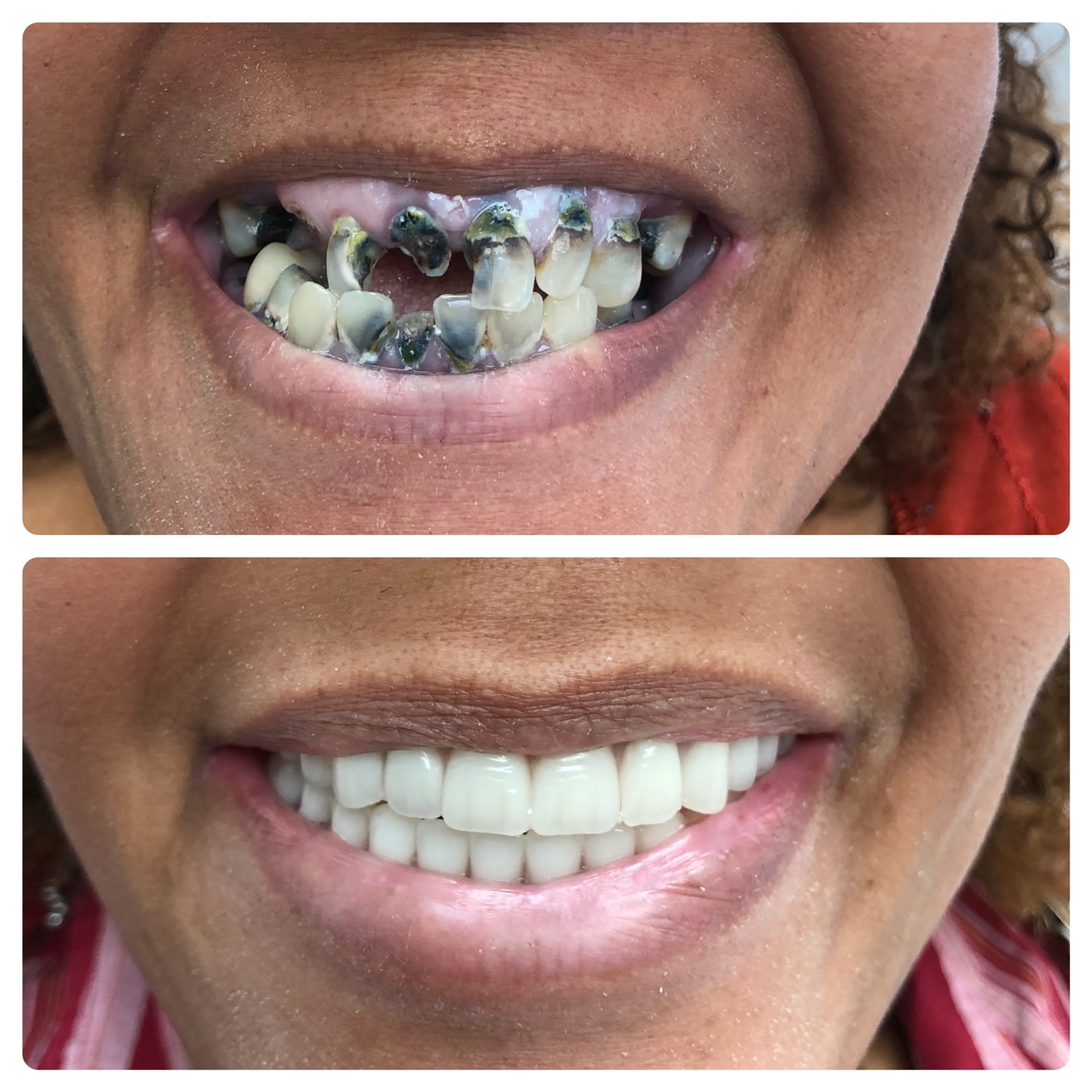 Full mouth reconstruction dental surgery