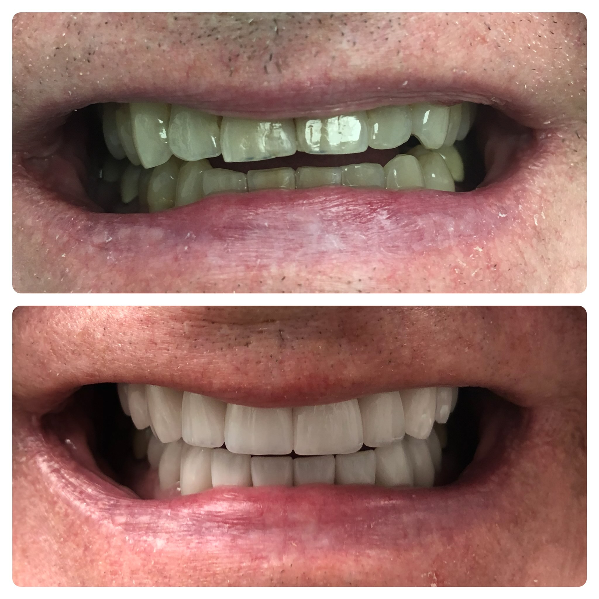 Full mouth reconstruction dental implants